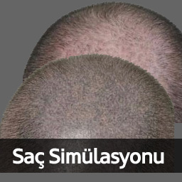 Hair_Simulation